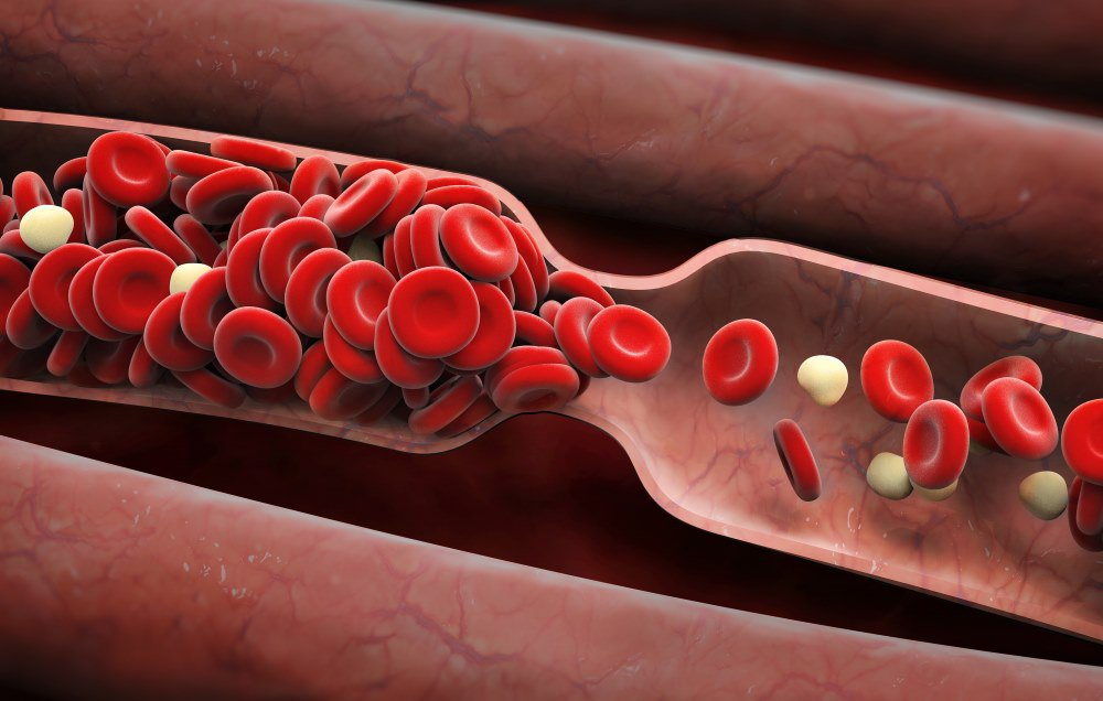 Does Smoking Cause Blood Clots
